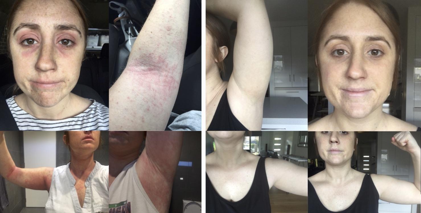 Eczema testimonial